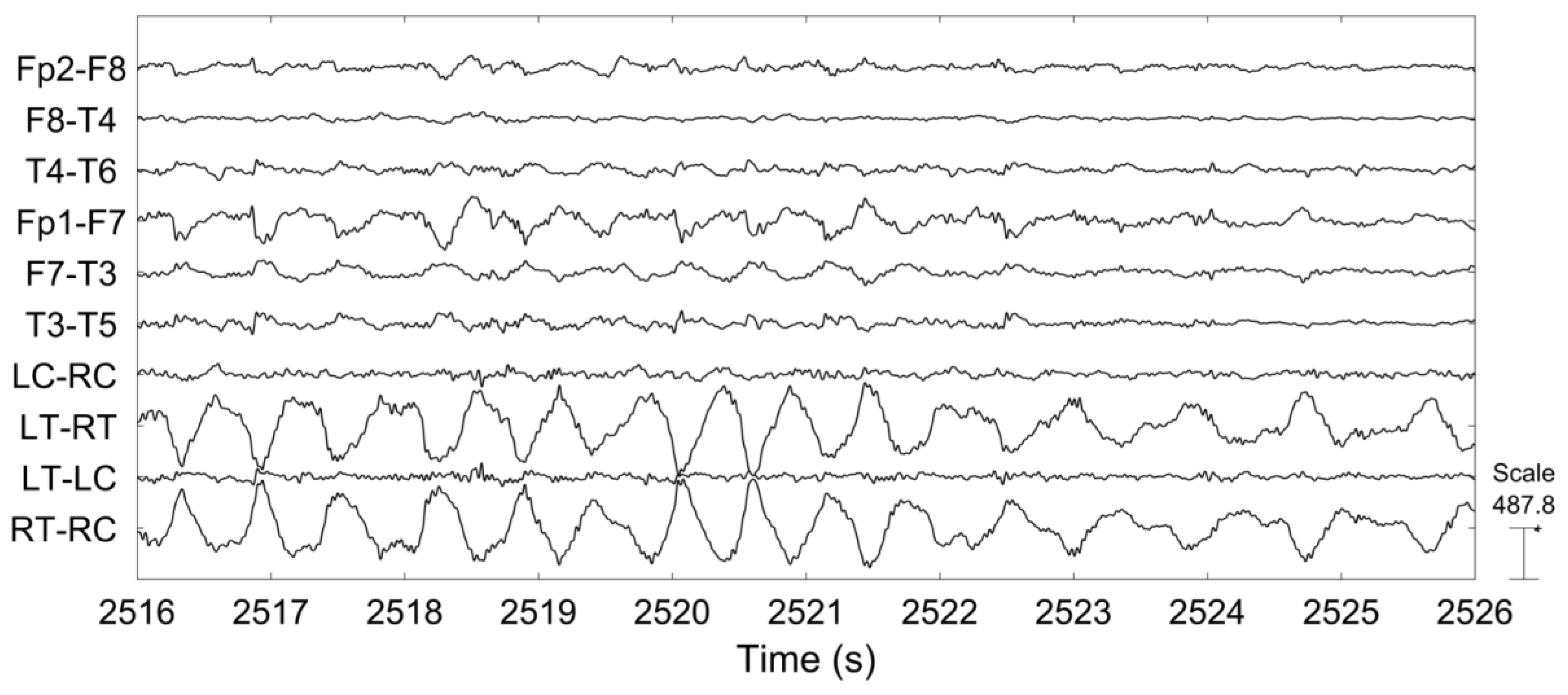 sensors free full text comparison between scalp eeg and behind