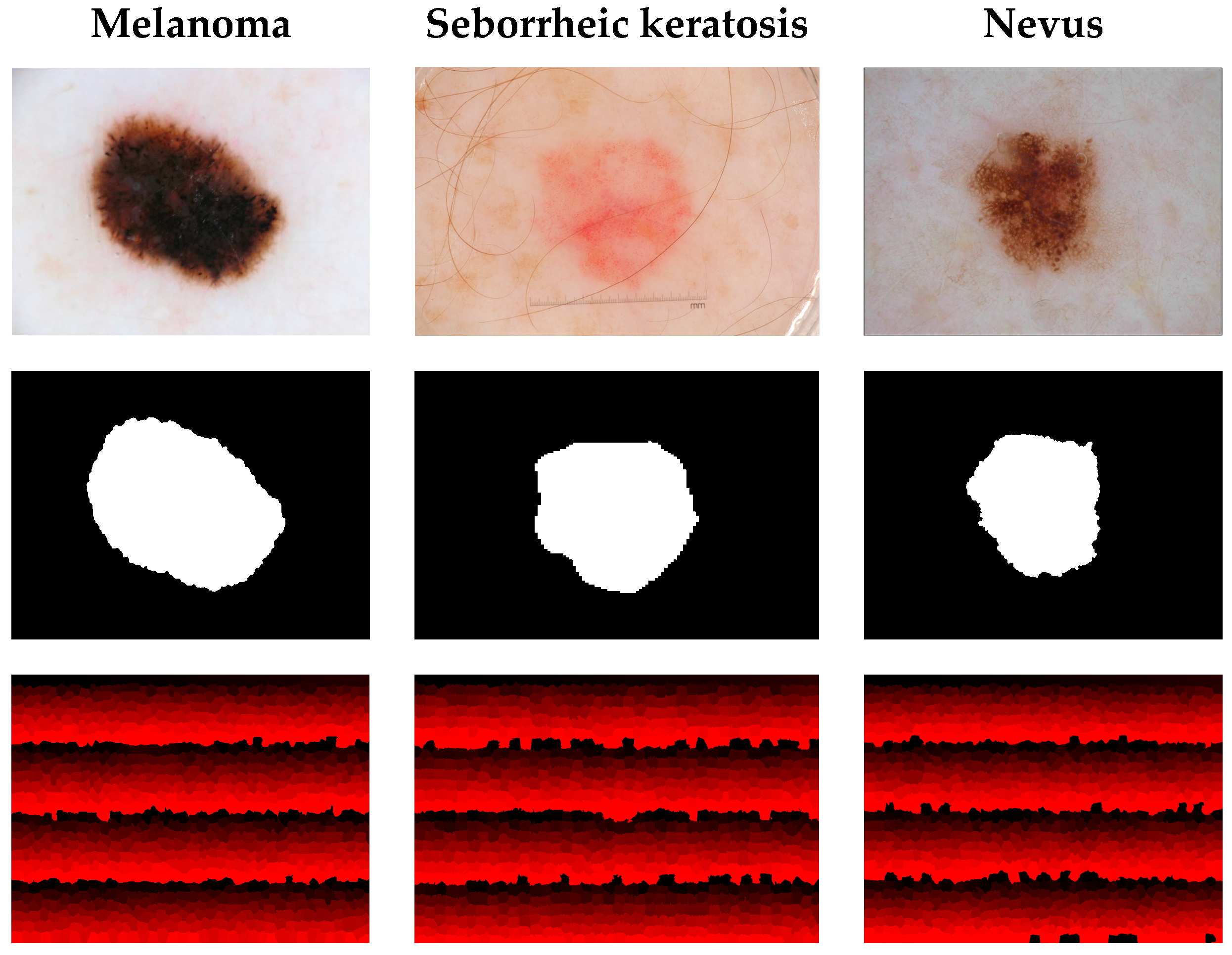 Sensors | Free Full-Text | Skin Lesion Analysis towards