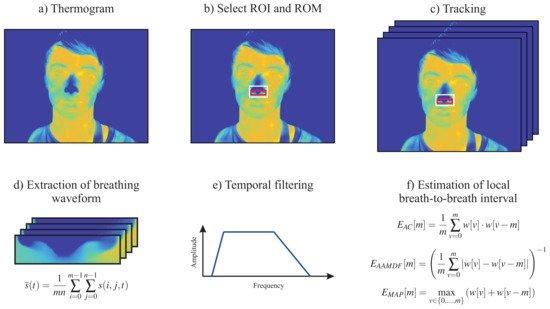 Sensors | Special Issue : Biomedical Infrared Imaging: From