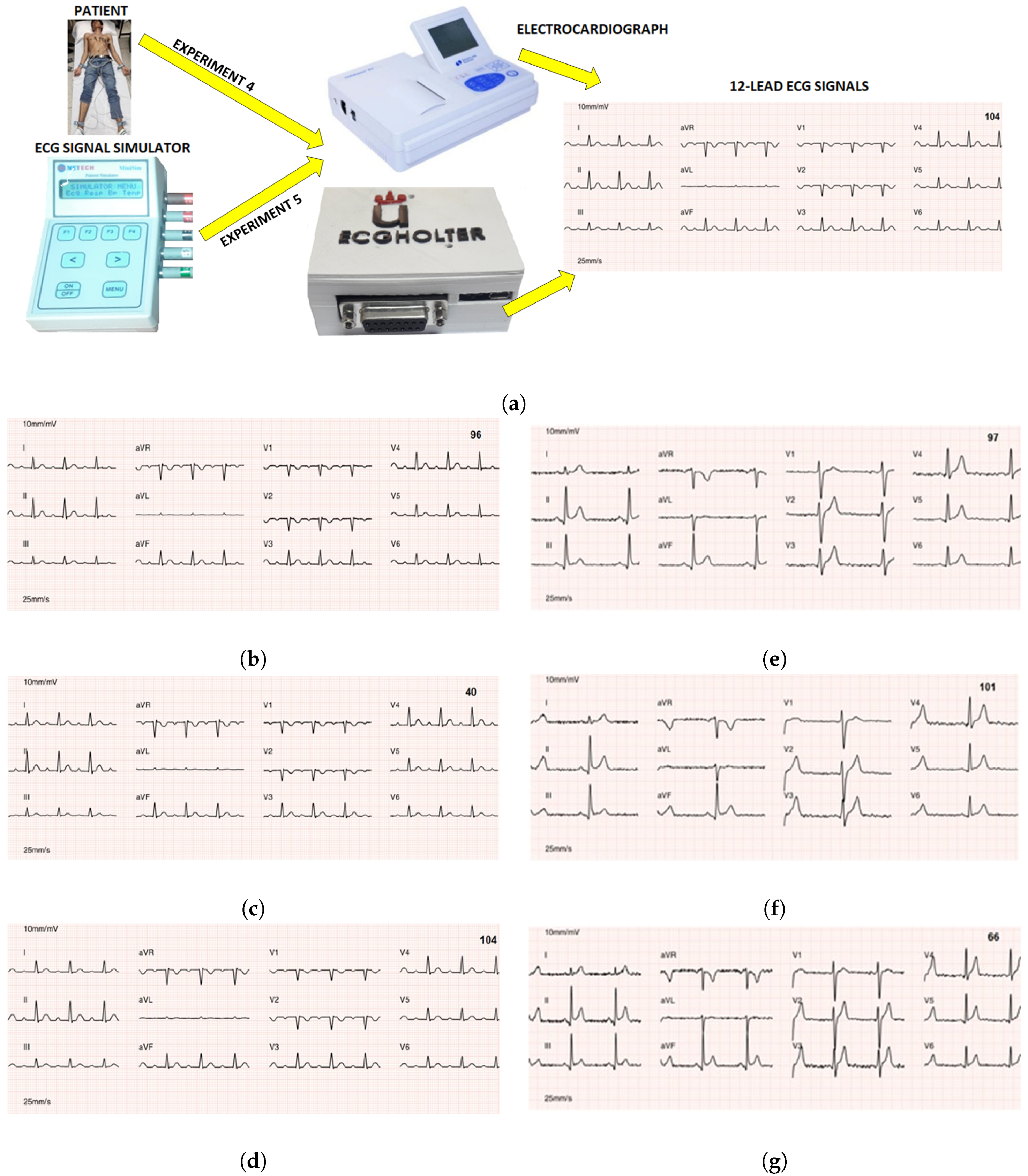 Sensors | Free Full-Text | A Flexible 12-Lead/Holter Device