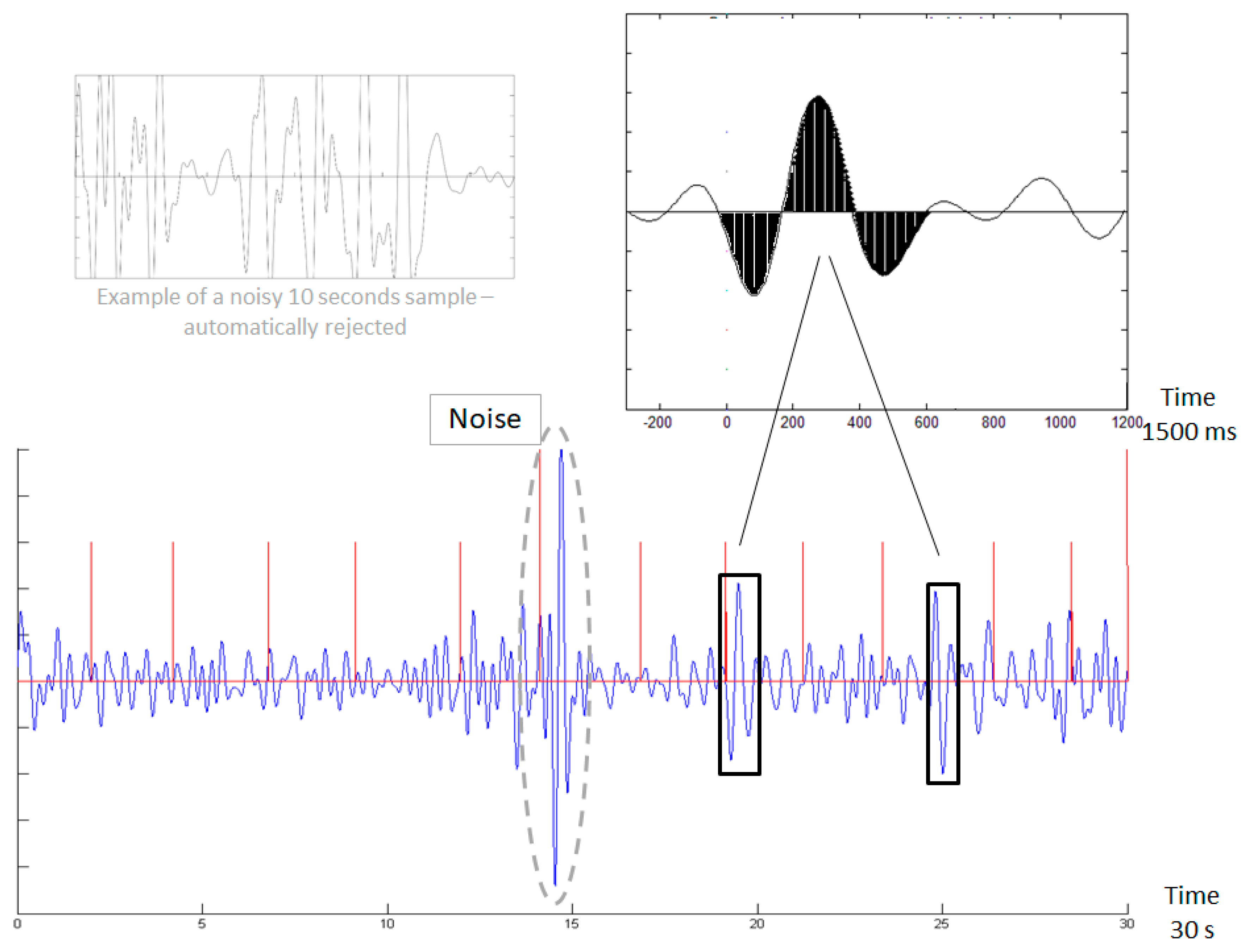 Sensors | Free Full-Text | Monitoring Migraine Cycle