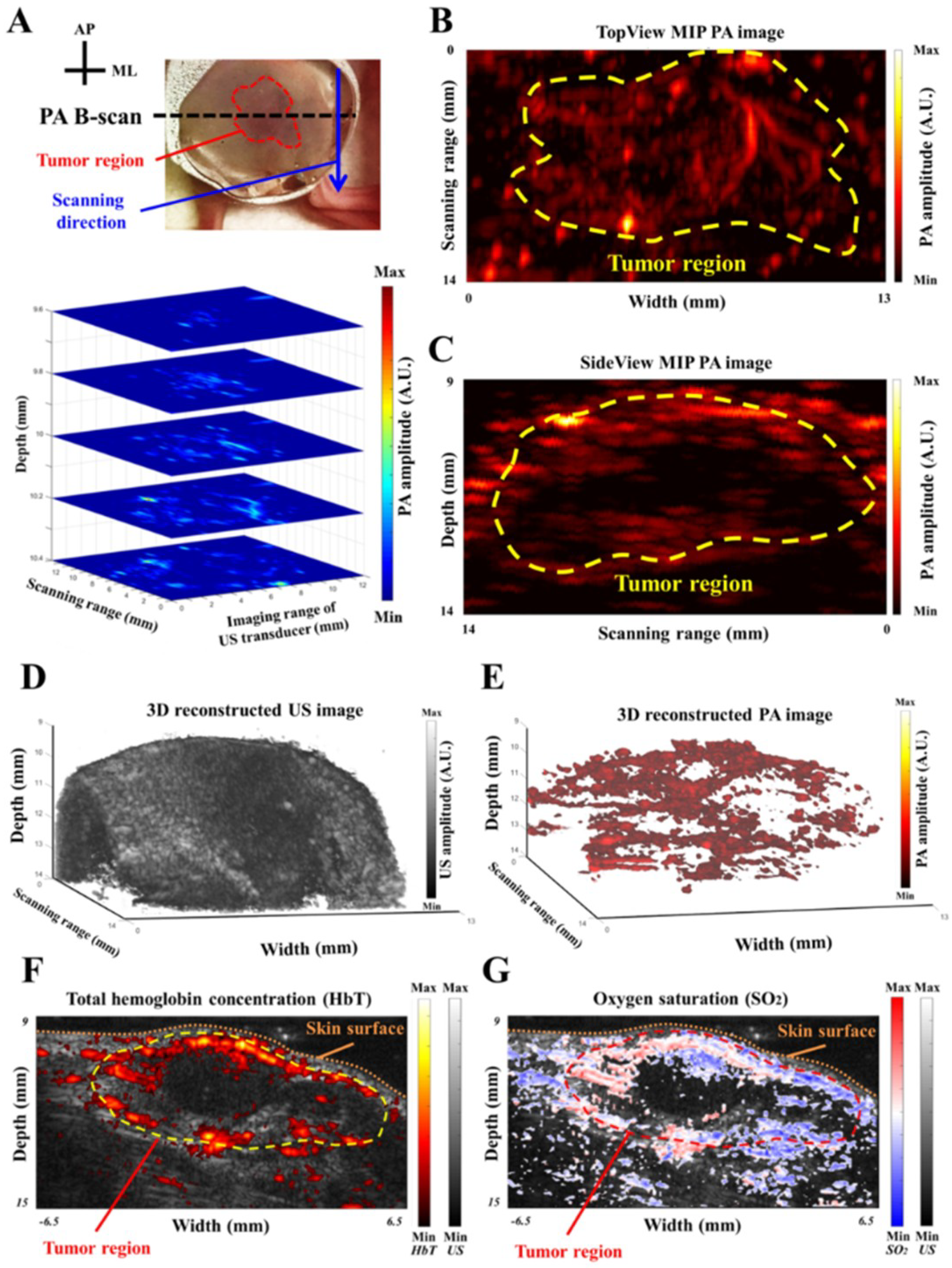 Sensors | Free Full-Text | A Handheld Real-Time Photoacoustic ...