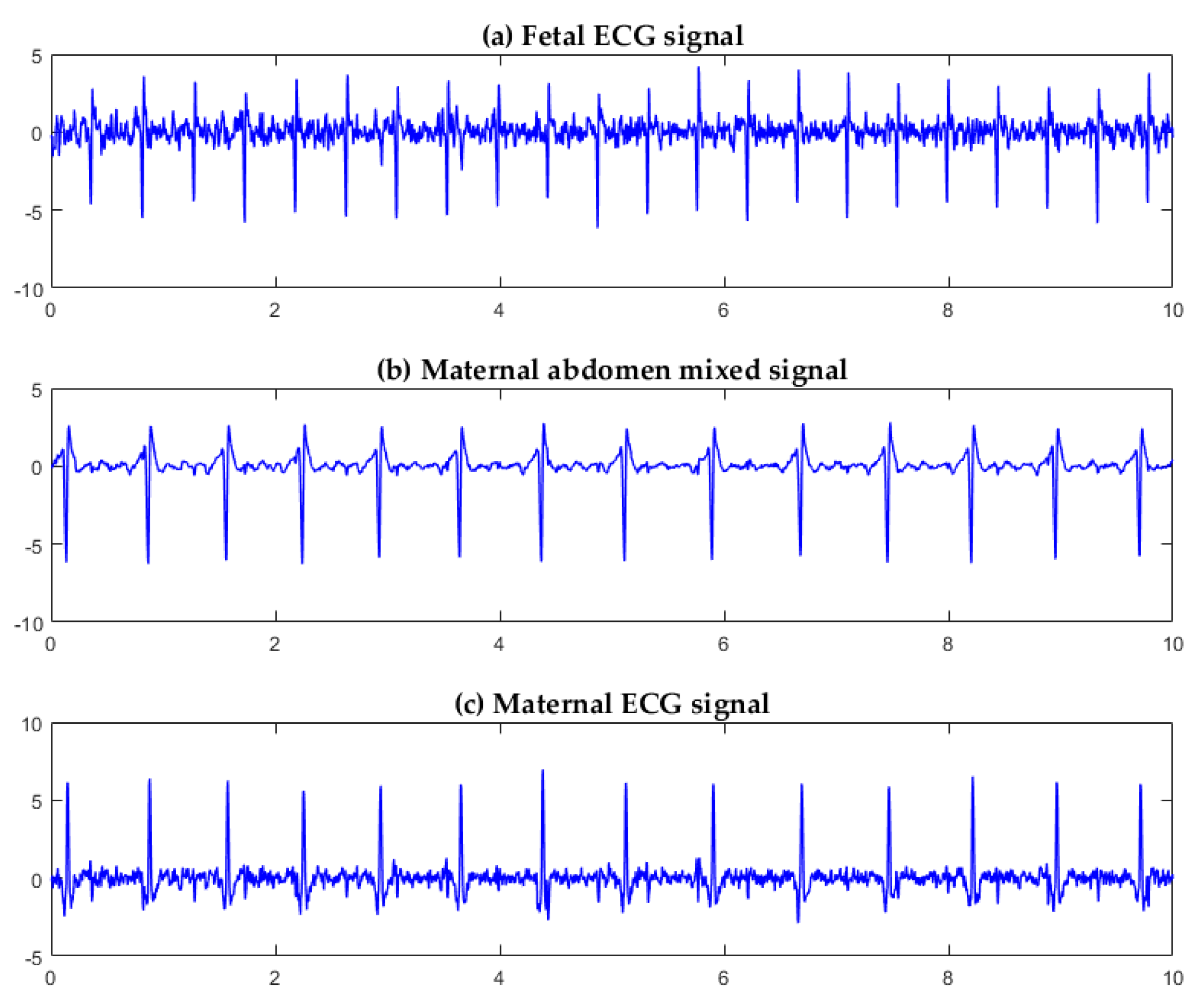 Sensors | Free Full-Text | A Fetal ECG Monitoring System Based on