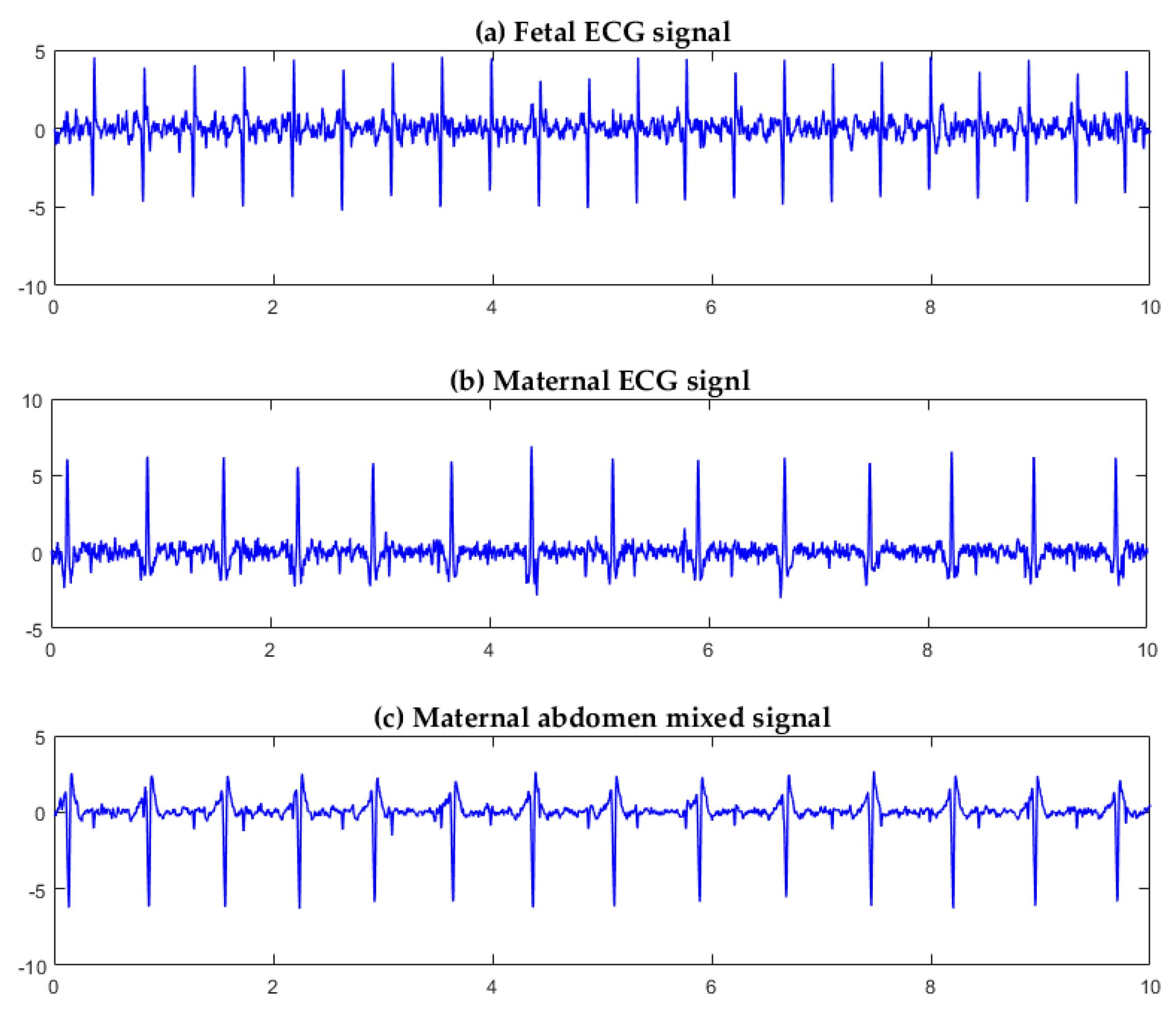 Sensors | Free Full-Text | A Fetal ECG Monitoring System Based on