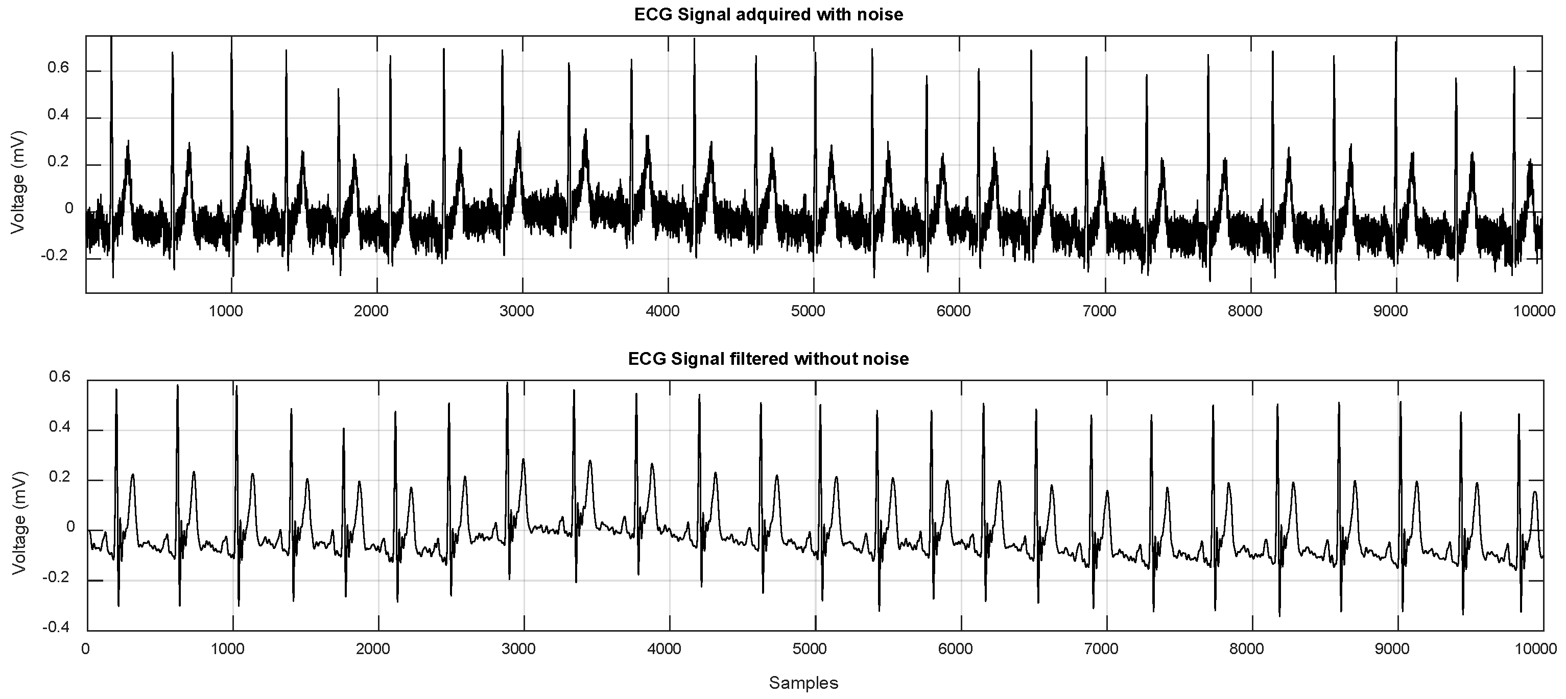 Sensors | Free Full-Text | Segmentation of the ECG Signal by