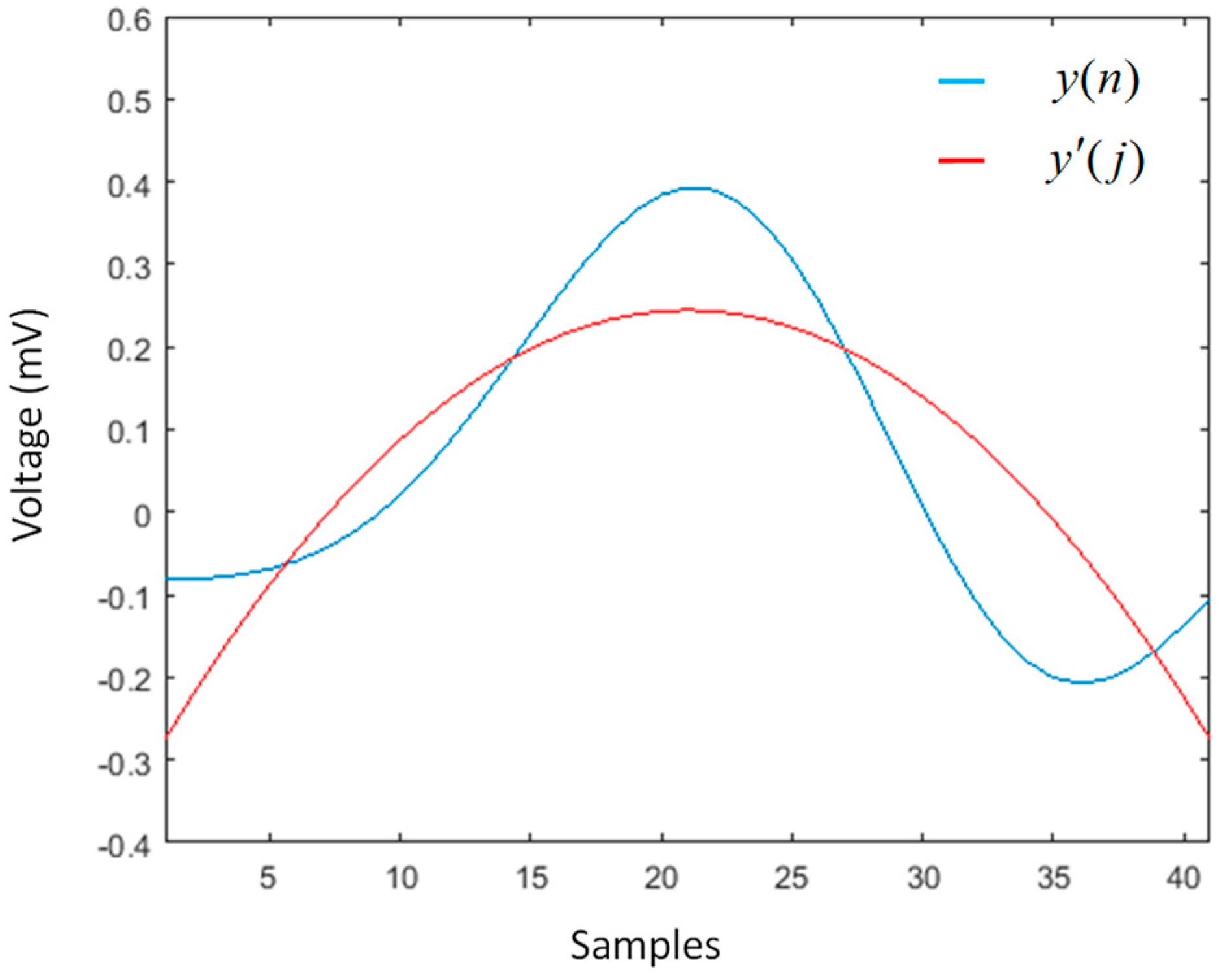 Sensors | Free Full-Text | Segmentation of the ECG Signal by