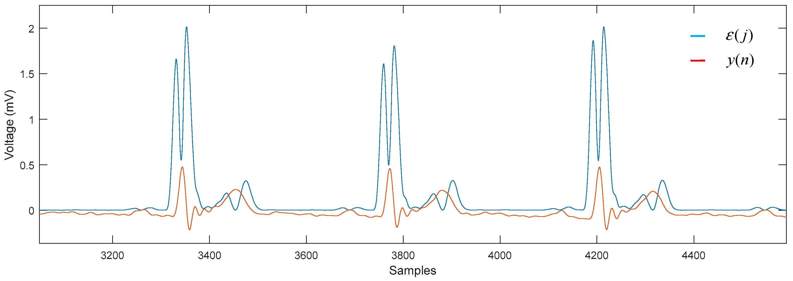 Sensors   Free Full-Text   Segmentation of the ECG Signal by