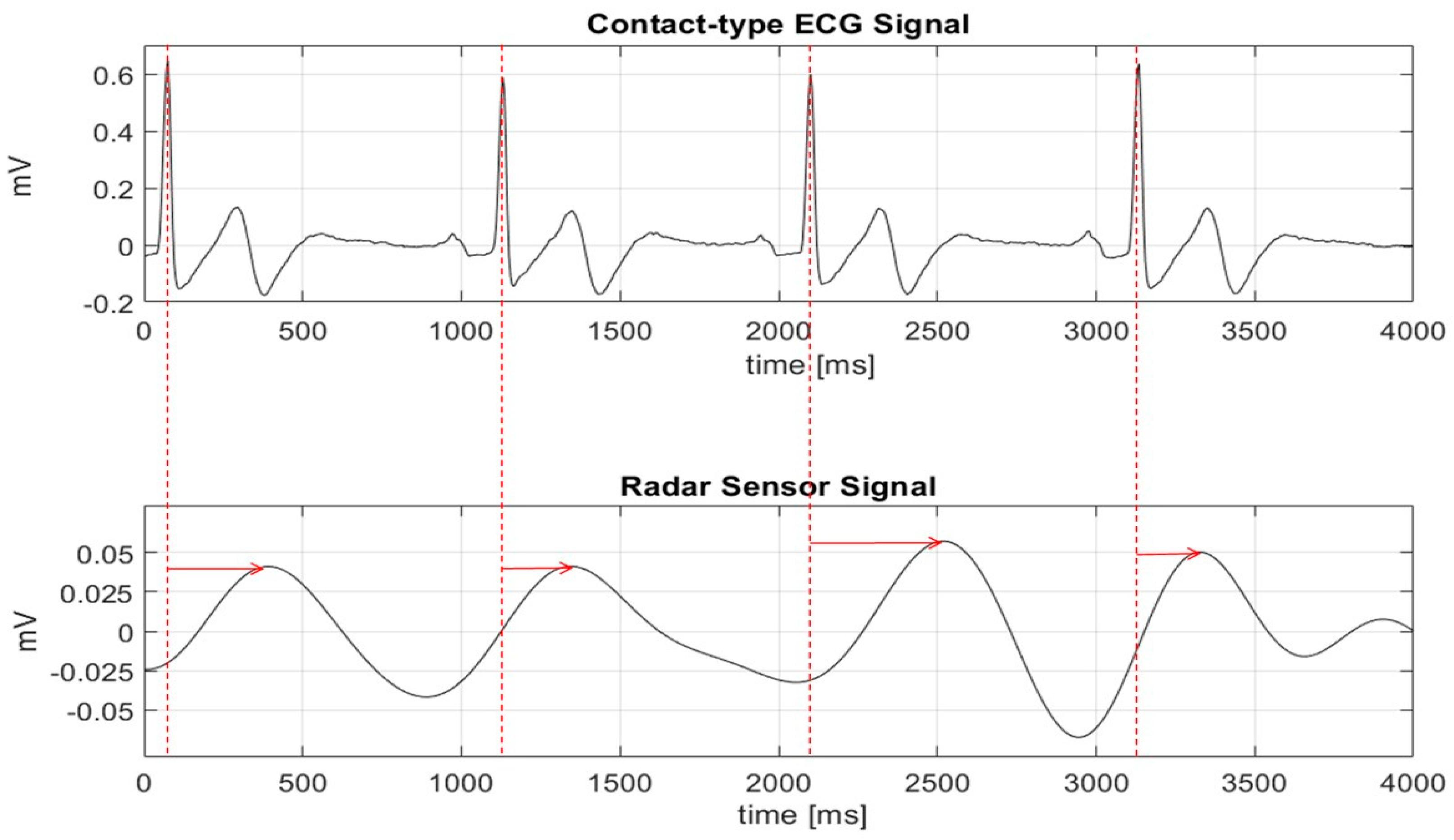 Sensors | Free Full-Text | Peak Detection Algorithm for