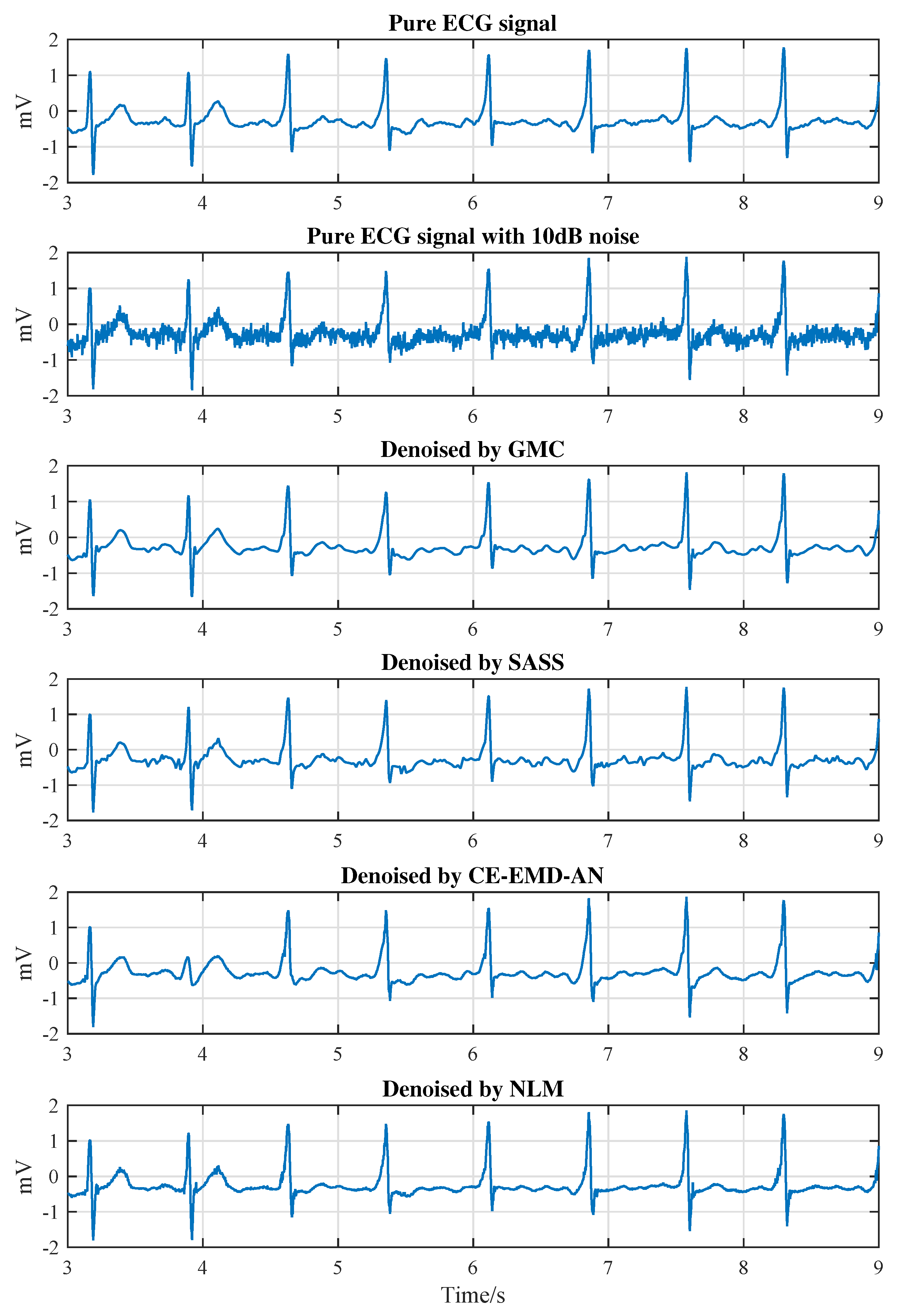 Sensors | Free Full-Text | Sparse ECG Denoising with