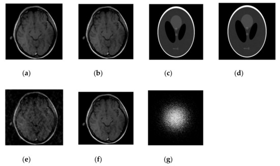 Mri Reconstruction Using Deep Learning
