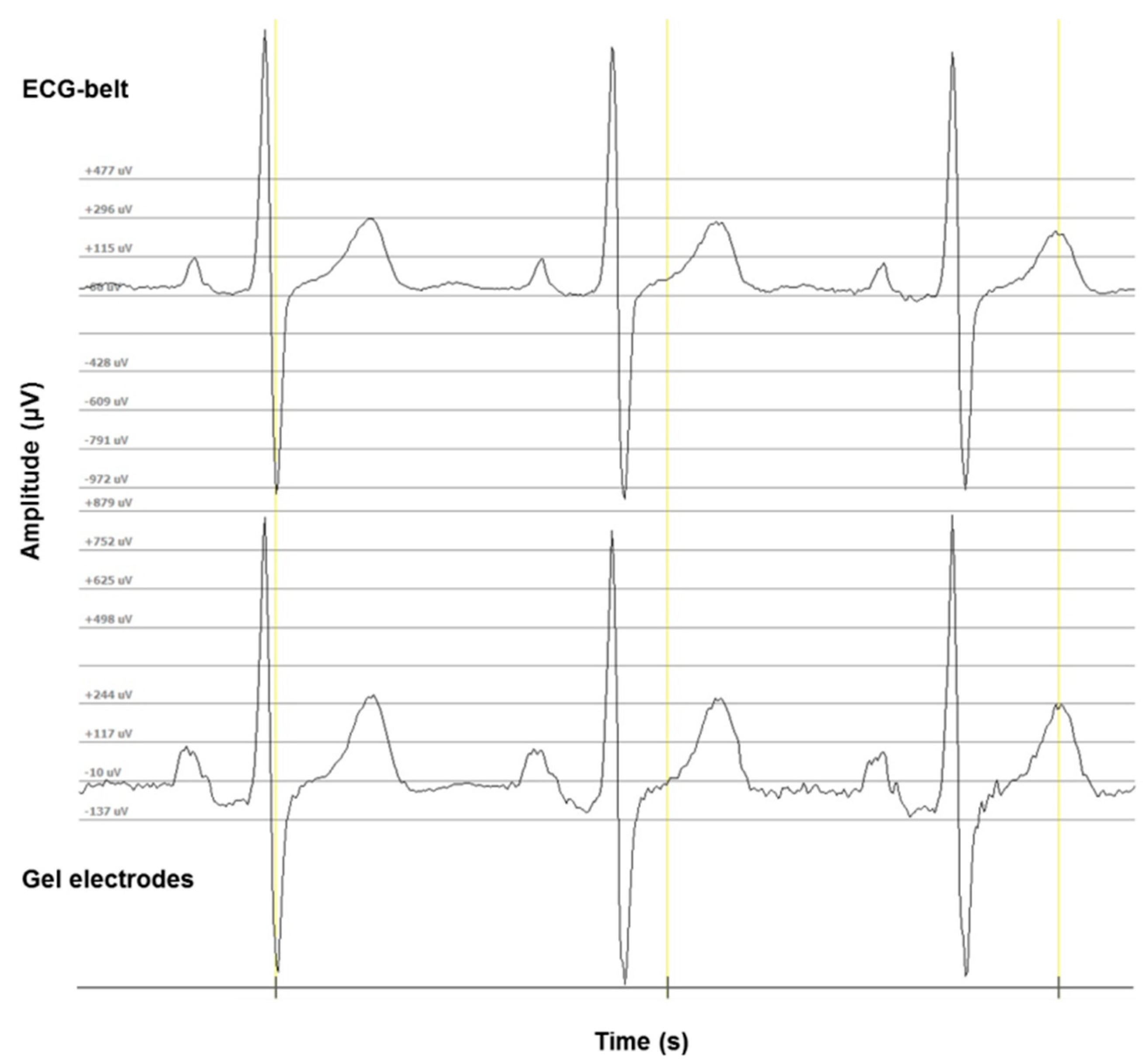 Sensors Free Full-Text Clinical Applicability of a Textile 1-Lead ECG Device for Overnight