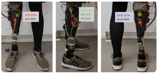 ec08a22e Sensors   Special Issue : Sensors for Gait, Posture, and Health ...