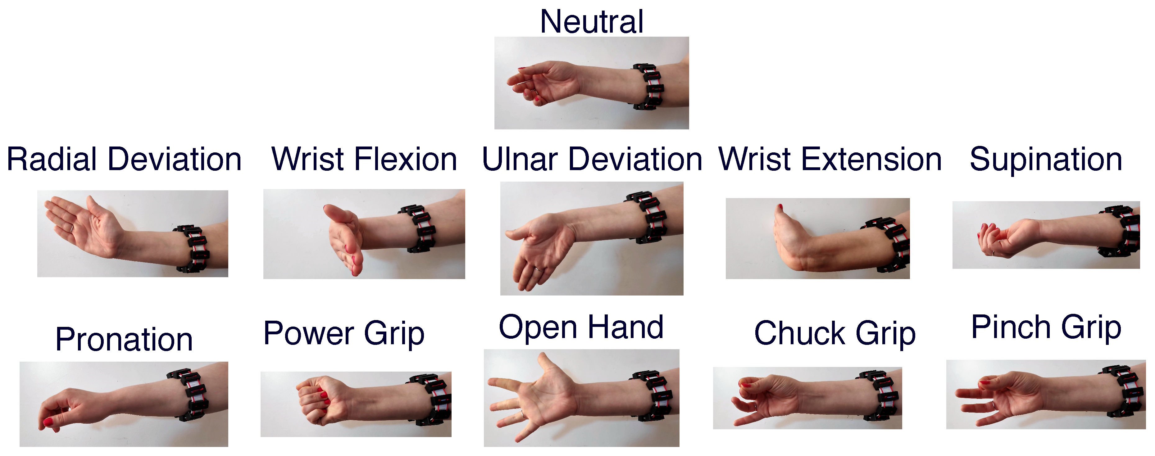 Sensors | Free Full-Text | A Low-Cost, Wireless, 3-D-Printed