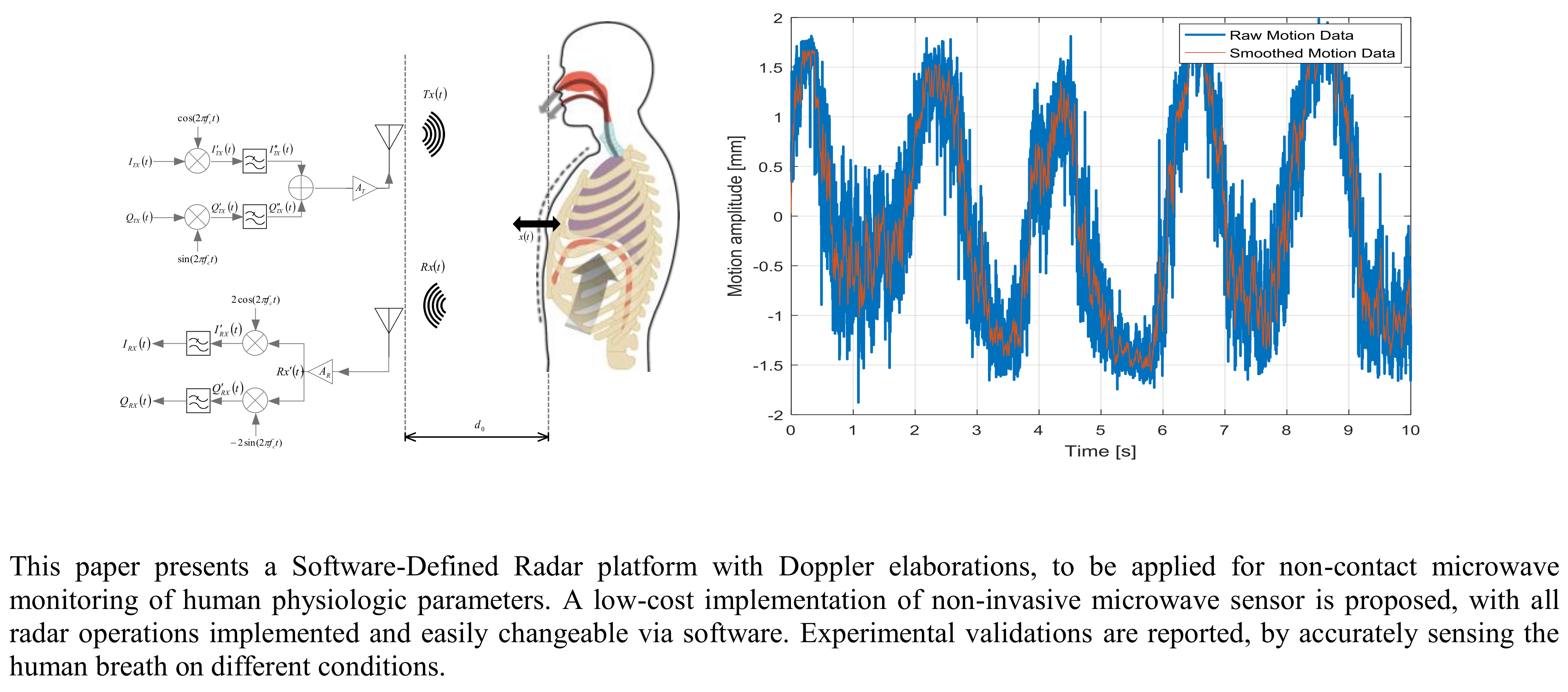 Sensors | Free Full-Text | Software-Defined Doppler Radar Sensor for