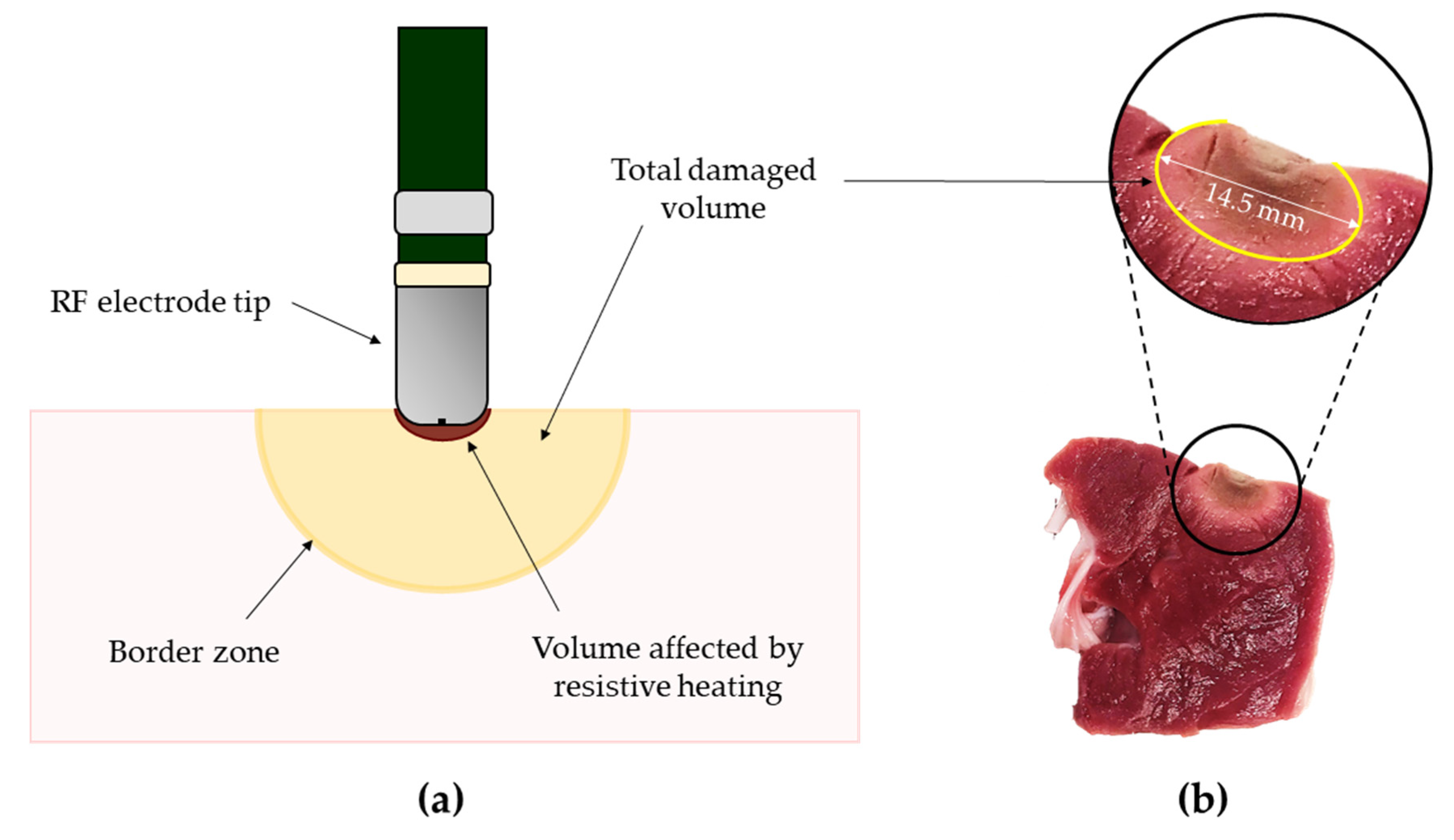 Sensors Free Full Text Techniques For Temperature Monitoring Of Myocardial Tissue Undergoing Radiofrequency Ablation Treatments An Overview Html