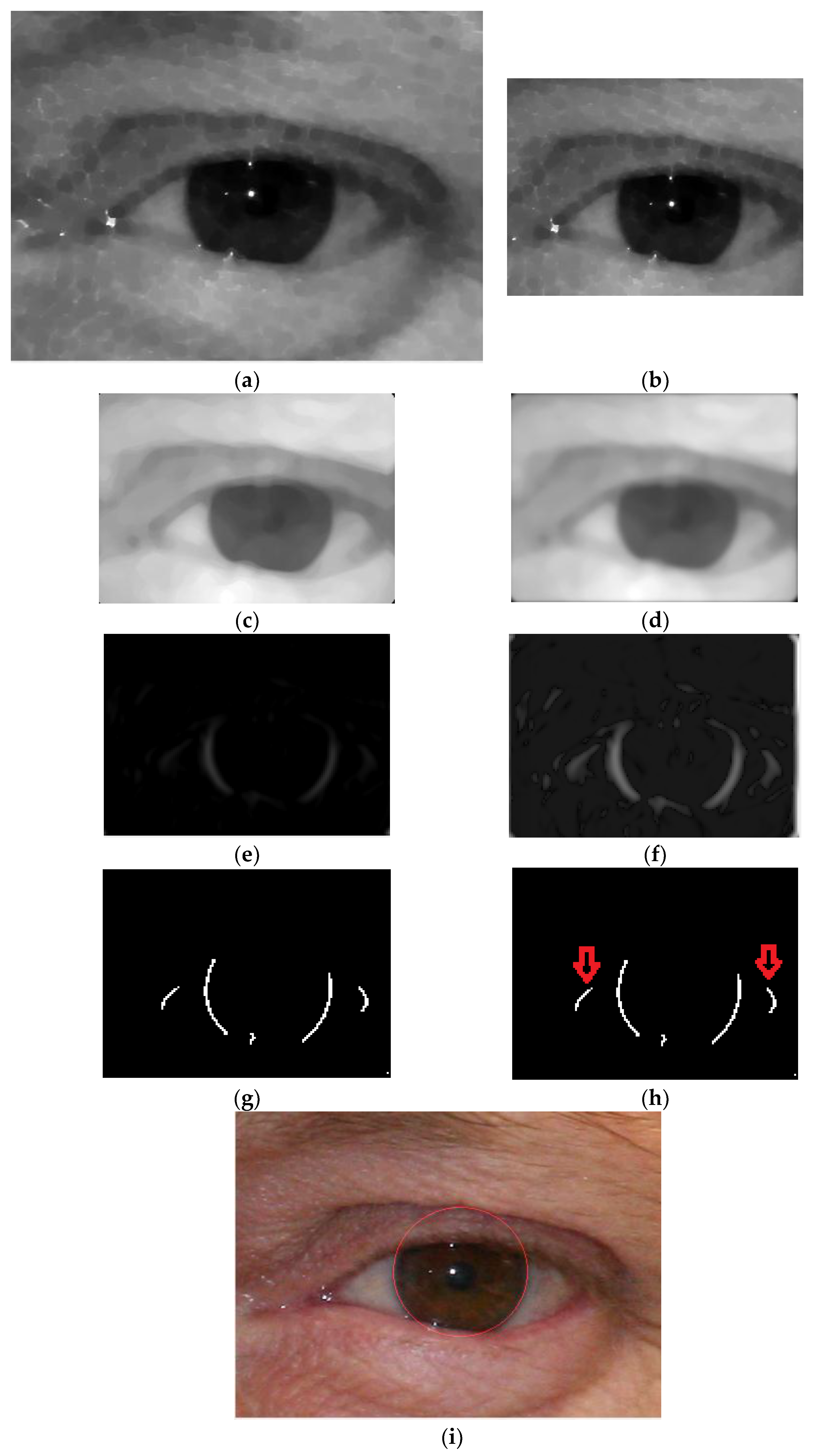 iris segmentation