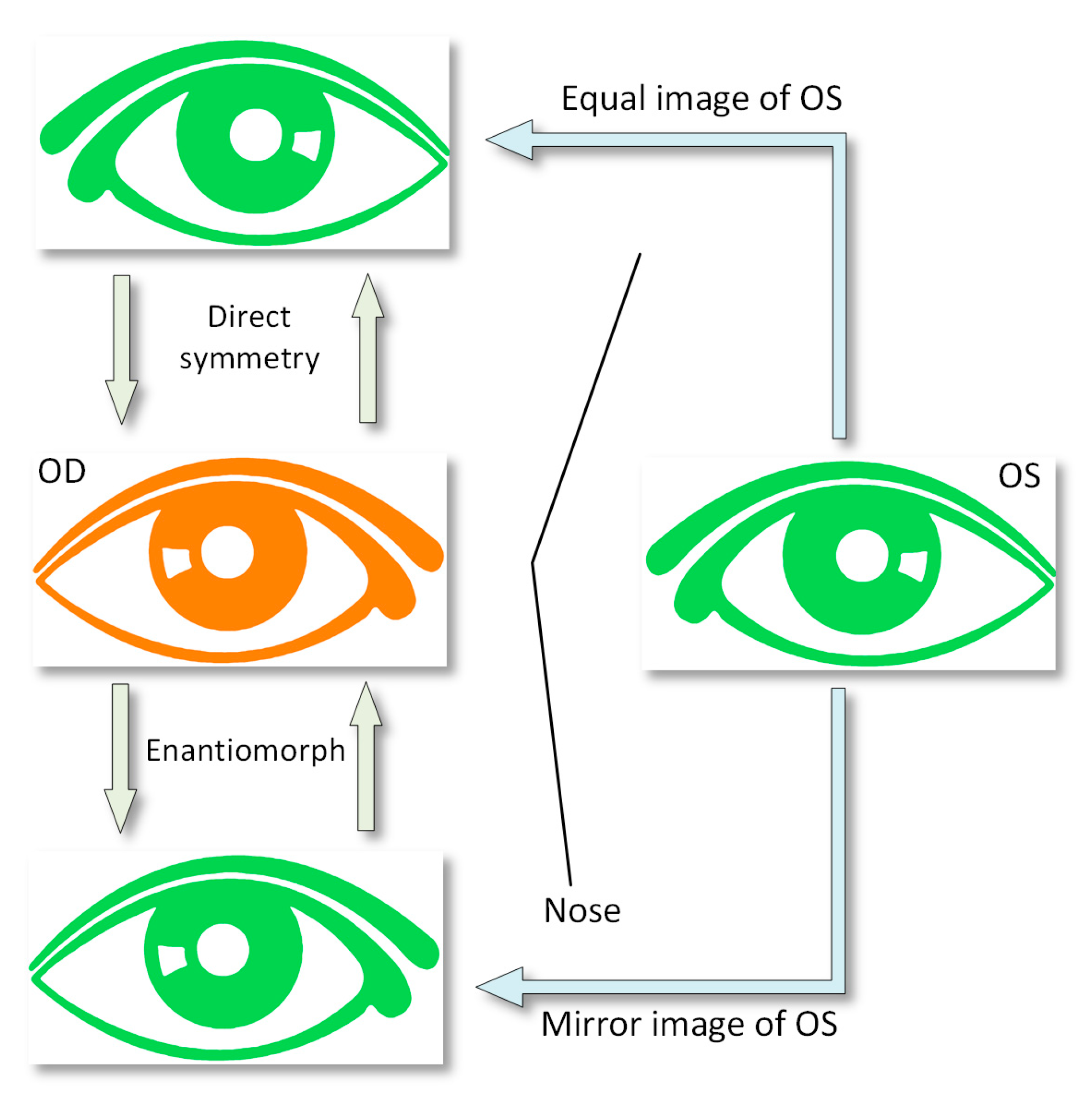 Symmetry Free Full Text Assessment Of Pattern And Shape Eyes Likewise What Do People With Astigmatism See As Well Eye Diagram 10 00453 G003