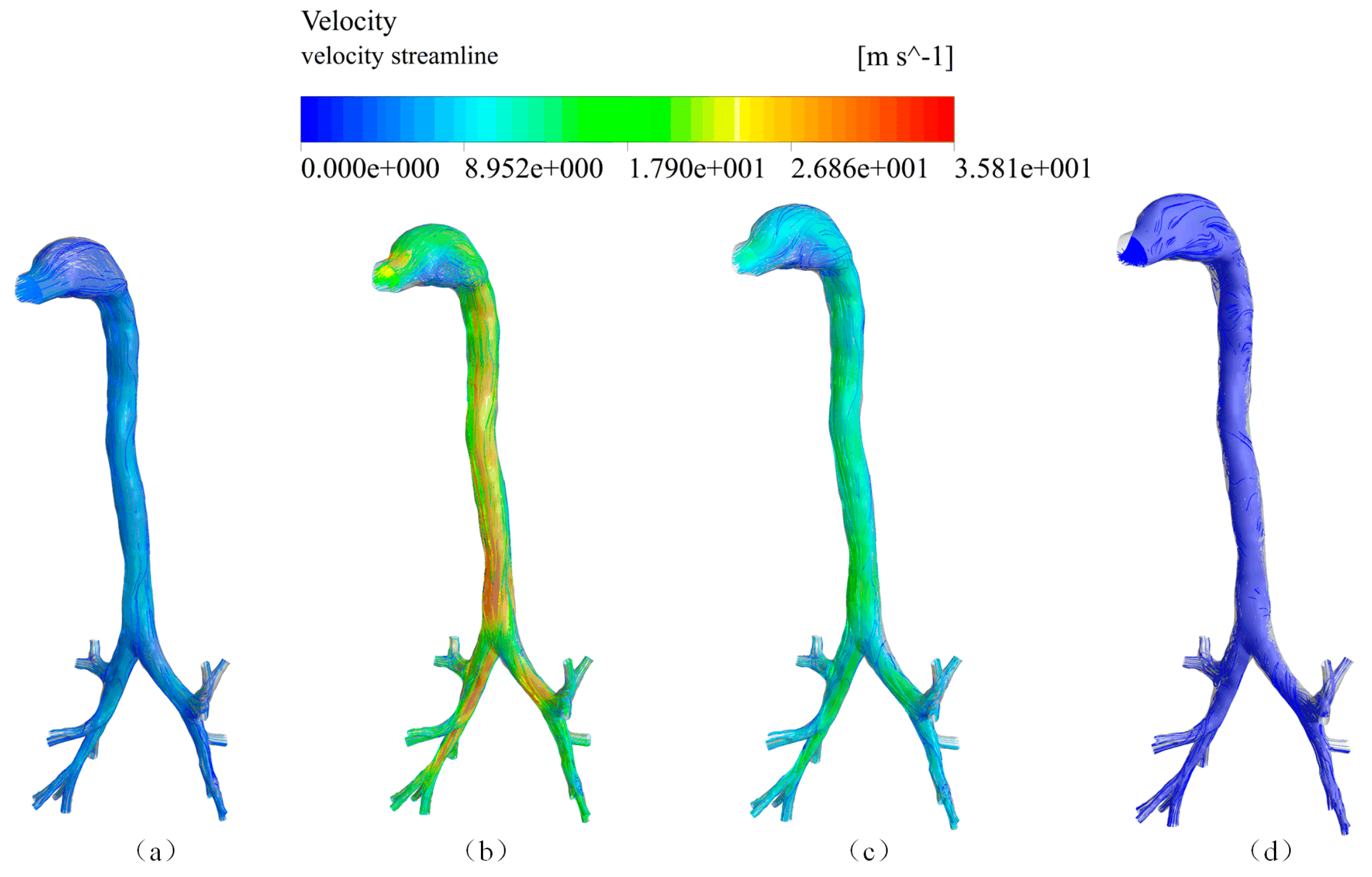 Symmetry | Free Full-Text | CFD Simulation of Airflow