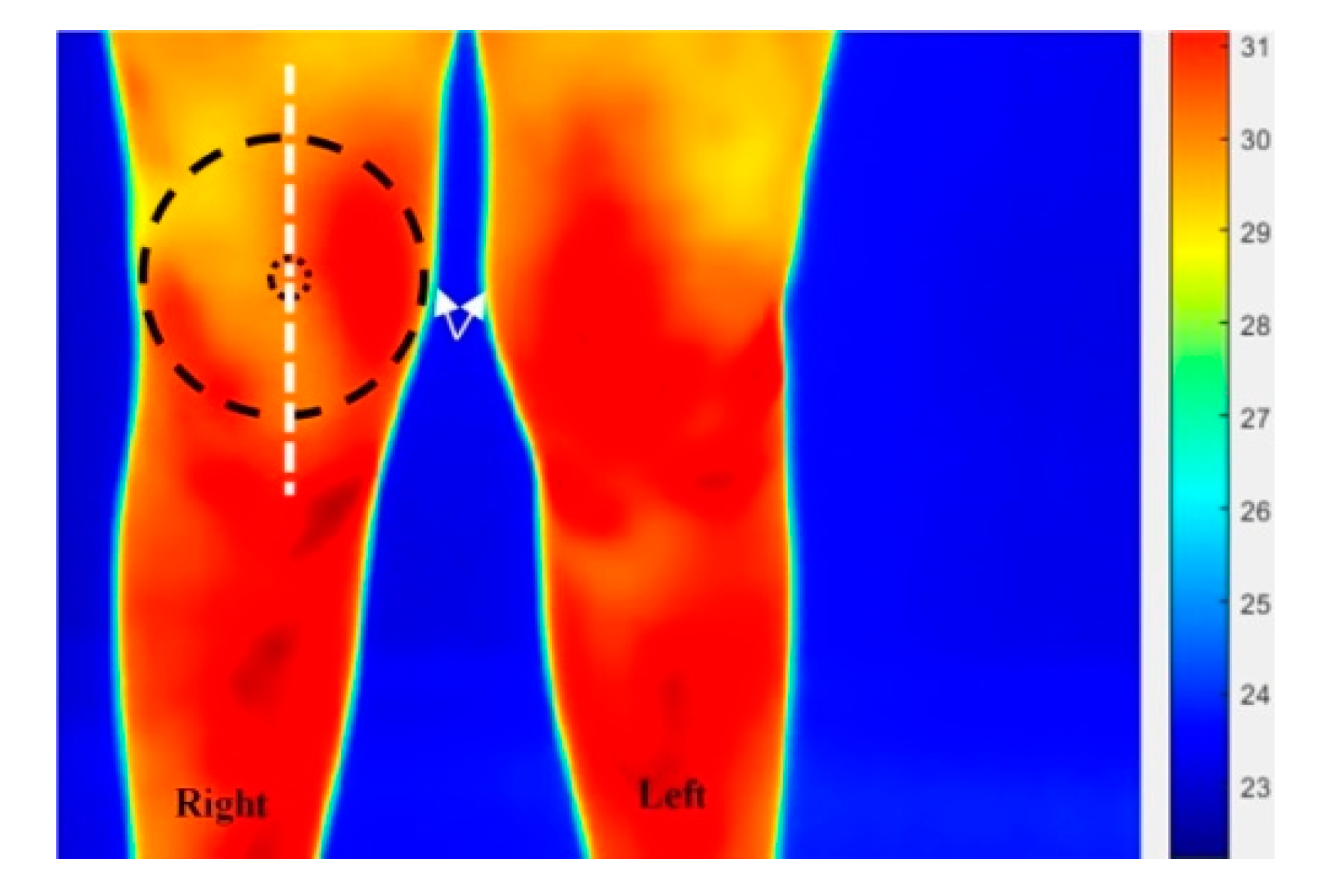 Technologies | Free Full-Text | Thermal and Visual Imaging to Assist with  Juvenile Idiopathic Arthritis Examination of the Knees | HTML