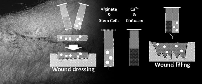 Anti-Microbial Regenerative Hydrogels as Potential Wound-Dressings
