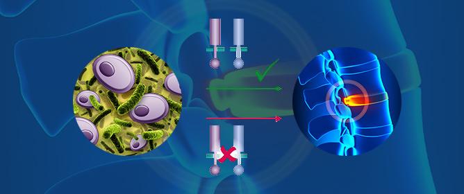 The Role of <em>Cutibacterium acnes</em> in Intervertebral Disc Inflammation