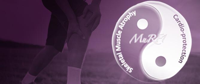 MuRF1/TRIM63, Master Regulator of Muscle Mass
