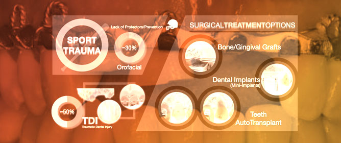 Sport and Dental Traumatology: Surgical Solutions and Prevention