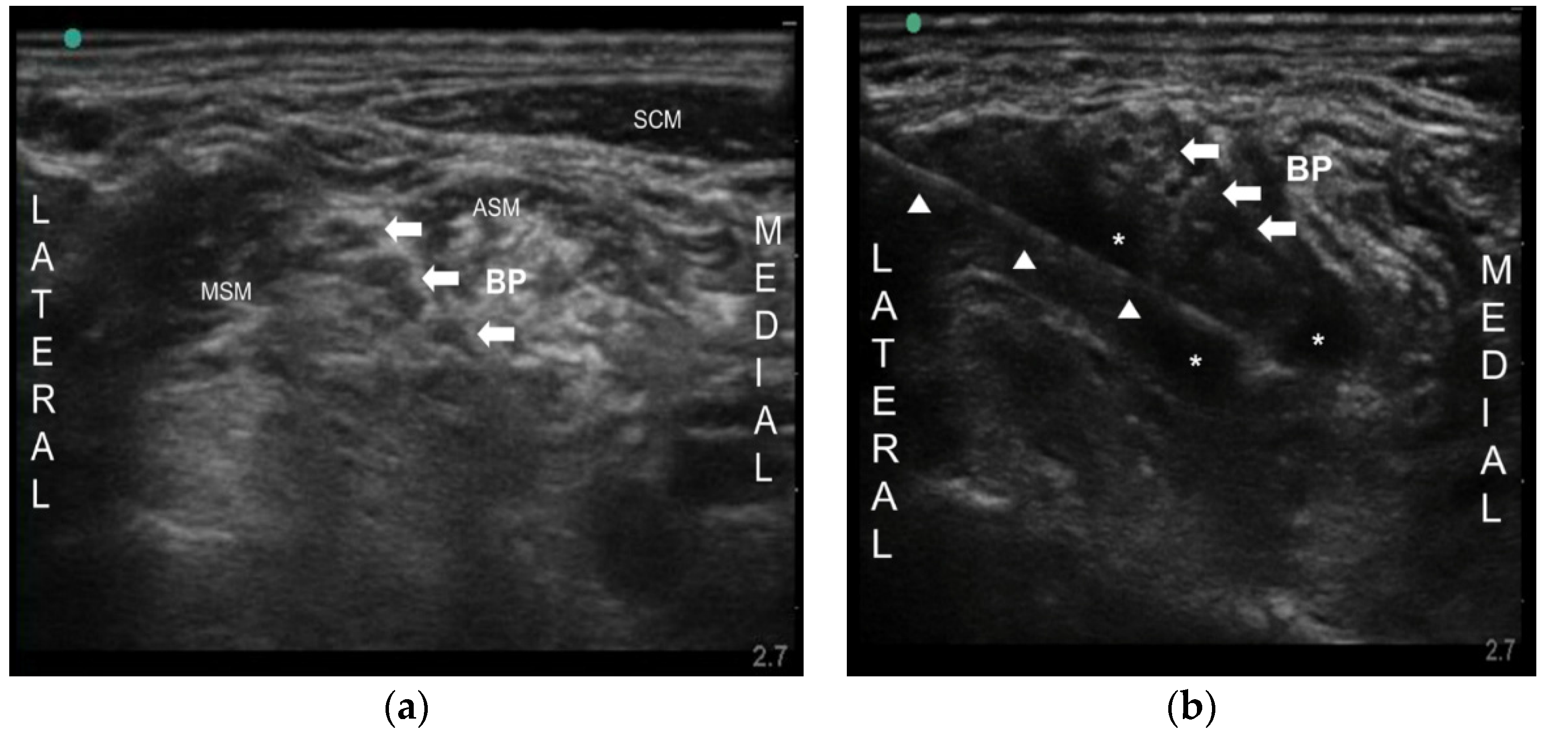 Toxins Free Full Text Ultrasound Guided Nerve Block