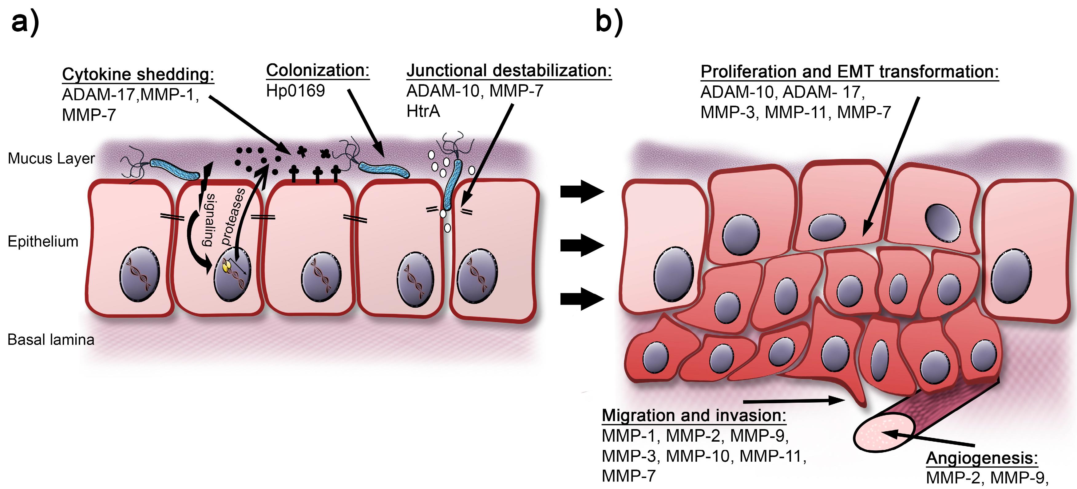 cancer gastric helicobacter clinici de tratament pentru viermi