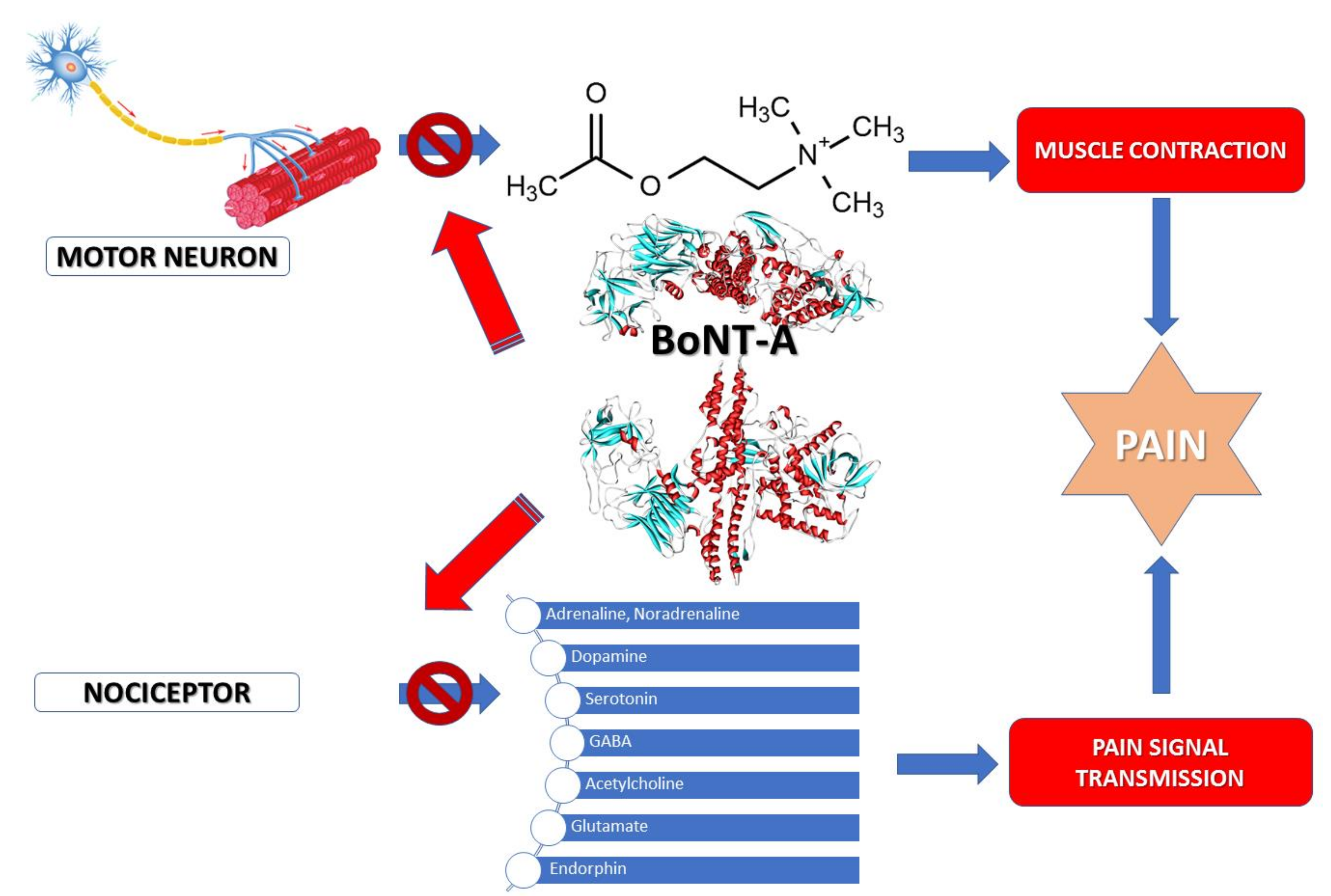 Toxins | Free Full-Text | Therapeutic Approaches of Botulinum Toxin in  Gynecology | HTML