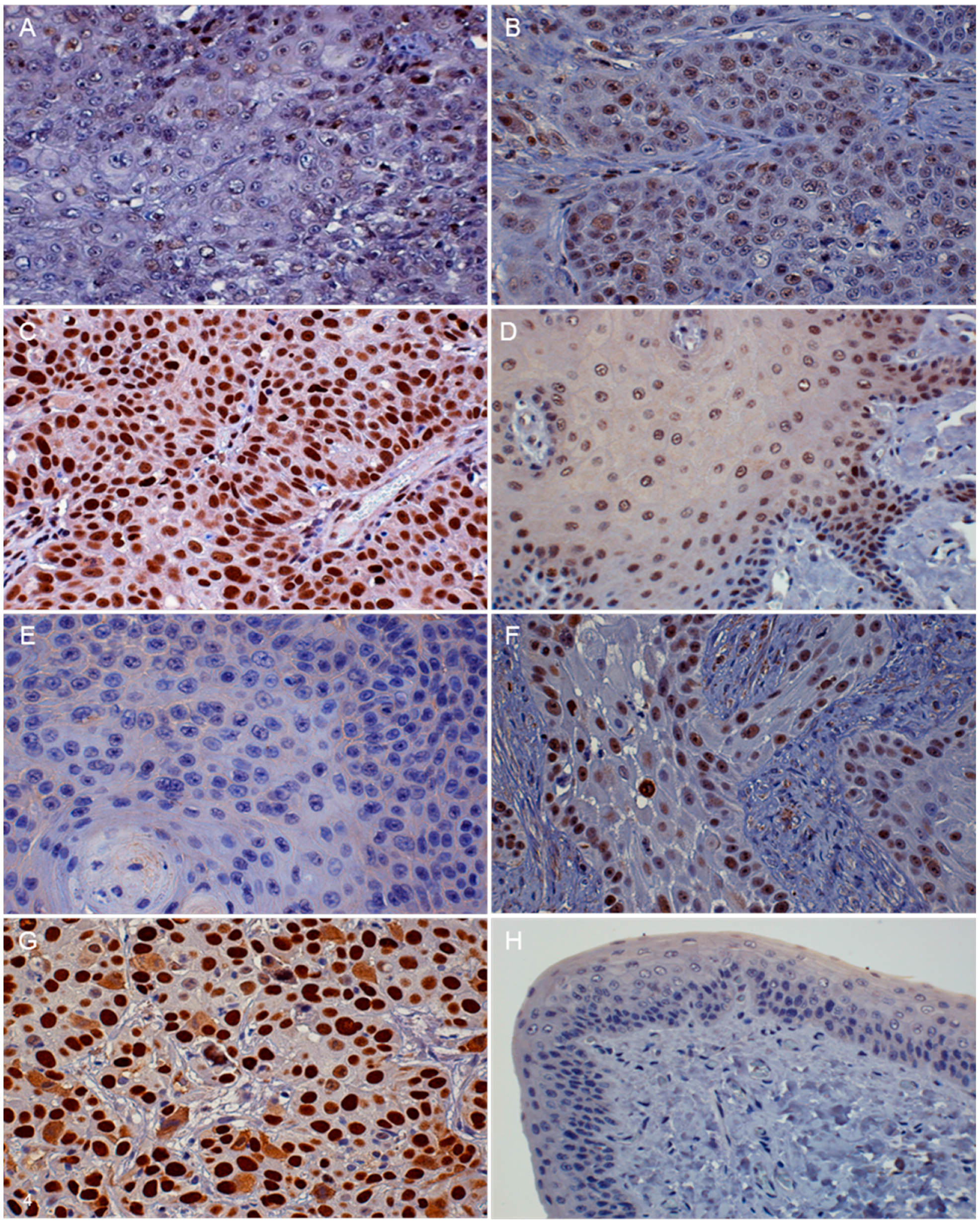 porn my friends hot girl