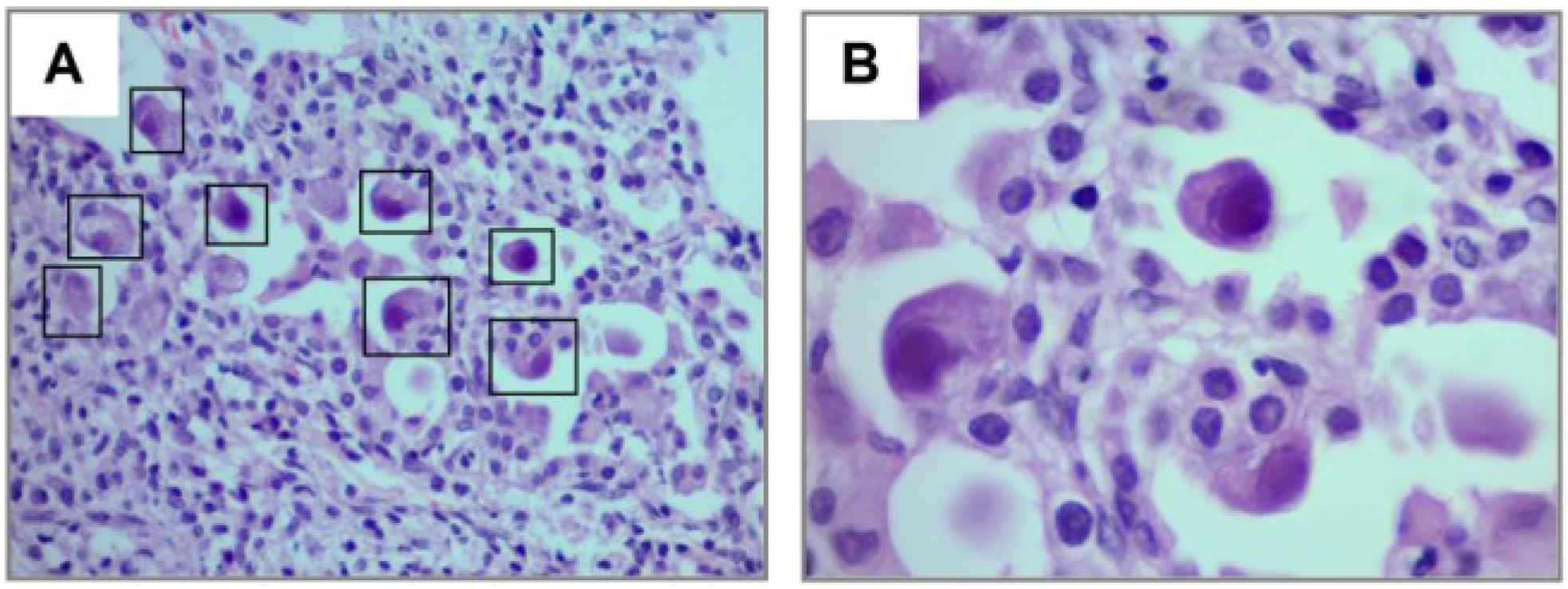 Cmv Histology