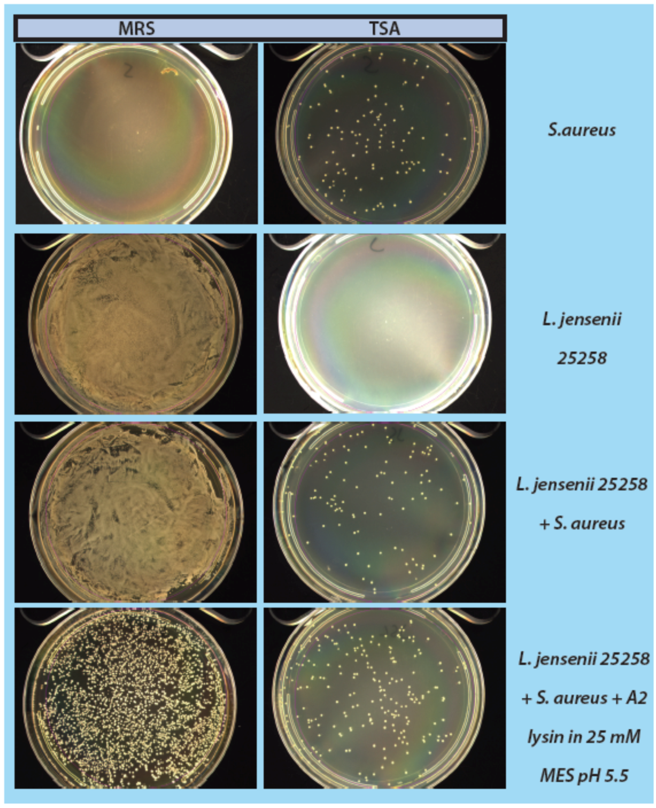 mrs broth l acidophilus Screening of lactobacilli derive d from chicken feces and partial characterization of lactobacillus acidophilus a12 as animal probiotics lee mrs broth (difco laboratories, detroit at 4,000 ×g for 10 min at 4o c l acidophilus a12 was then suspended in mrs broth containing 1% (w/v.