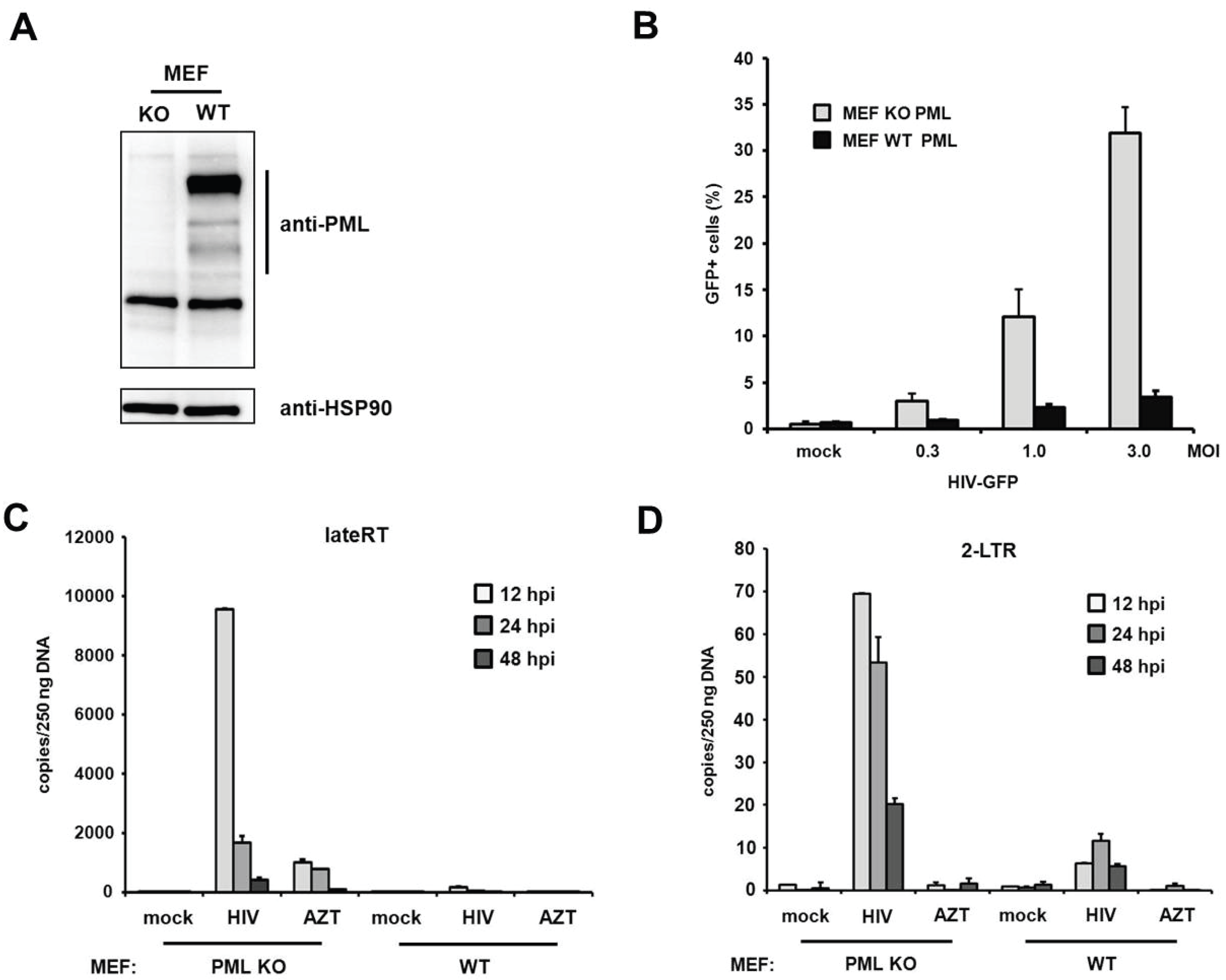 Viruses | Free Full-Text | TRIM19/PML Restricts HIV Infection in a