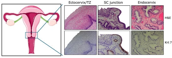 Deciphering the Multifactorial Susceptibility of Mucosal Junction Cells to HPV Infection and Related Carcinogenesis