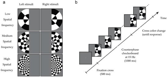 Vision | Special Issue : Visual Perception and Its Neural