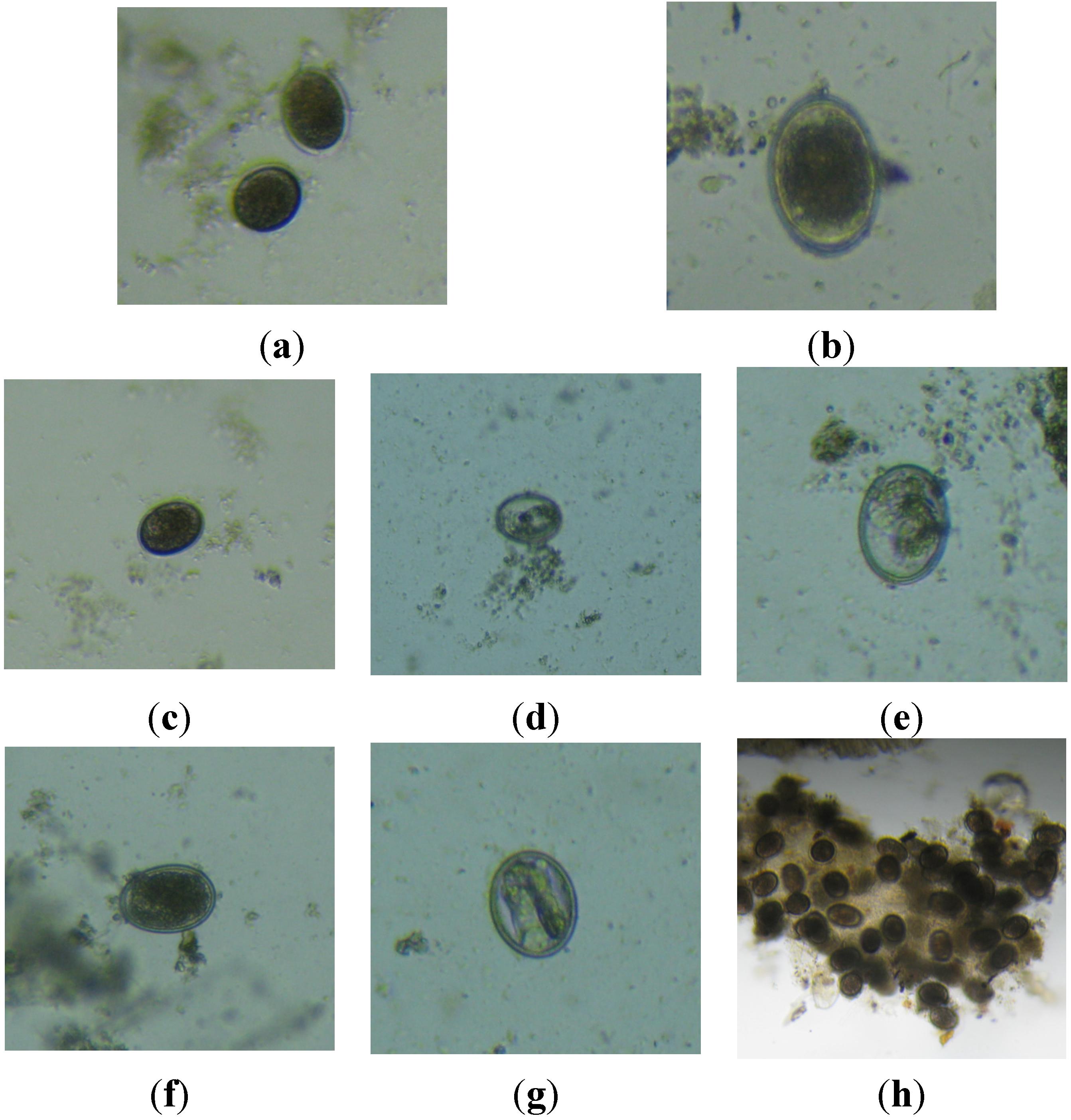 helminth eggs treatment que es papiloma en medicina